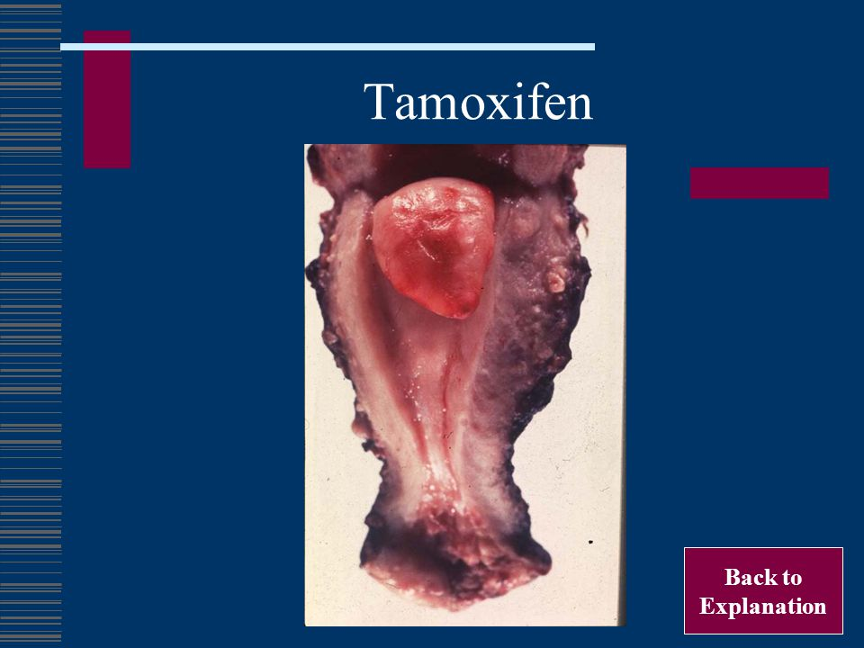Tamoxifen Back to Explanation