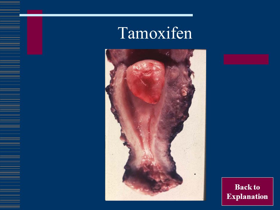Tamoxifen Back to Explanation