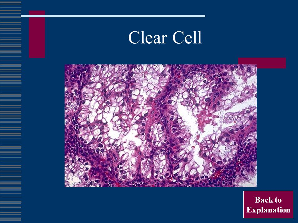 Clear Cell Back to Explanation