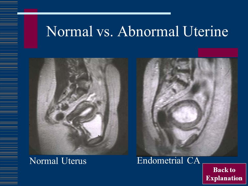 Normal vs. Abnormal Uterine