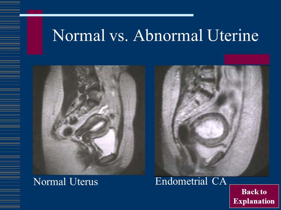 Normal vs. Abnormal Uterine