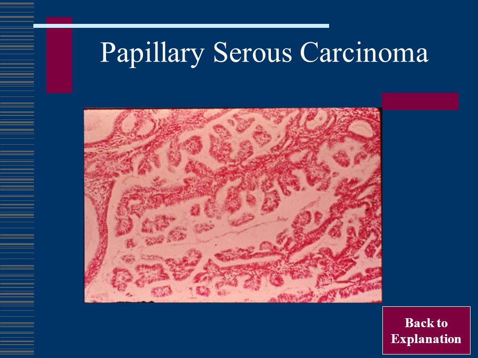 Papillary Serous Carcinoma