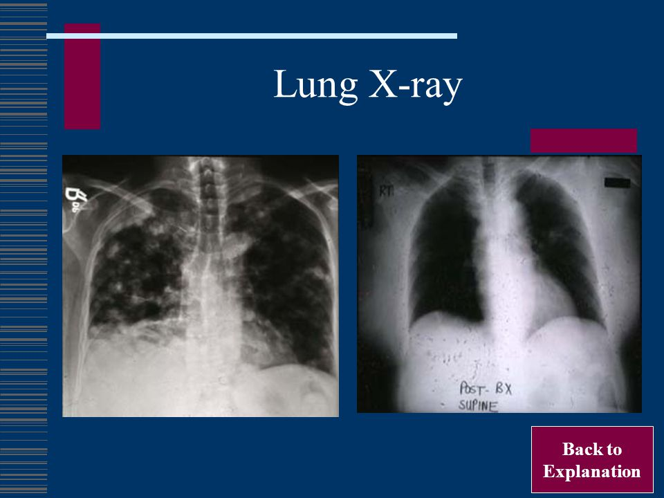 Lung X-ray Back to Explanation