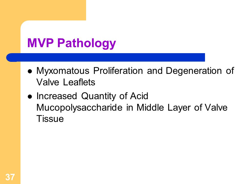 MVP Pathology Myxomatous Proliferation and Degeneration of Valve Leaflets.