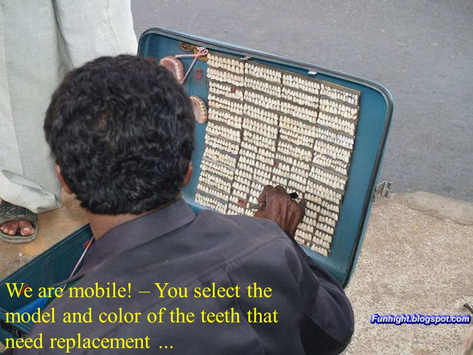 We are mobile! – You select the model and color of the teeth that need replacement ...