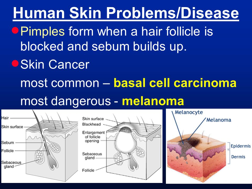 Human Skin Problems/Disease