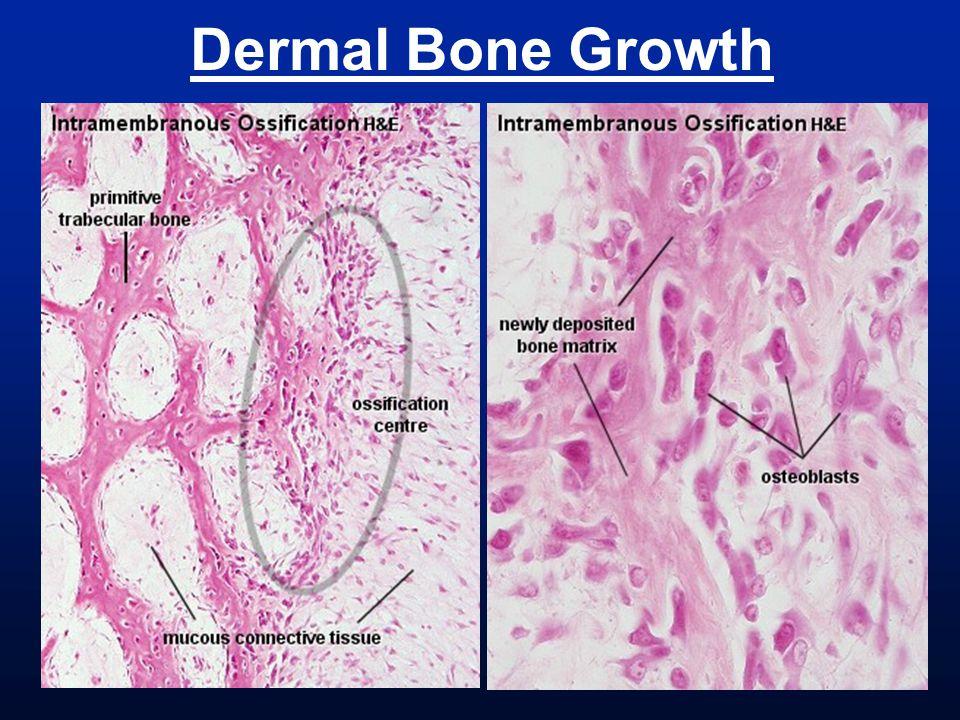 Dermal Bone Growth