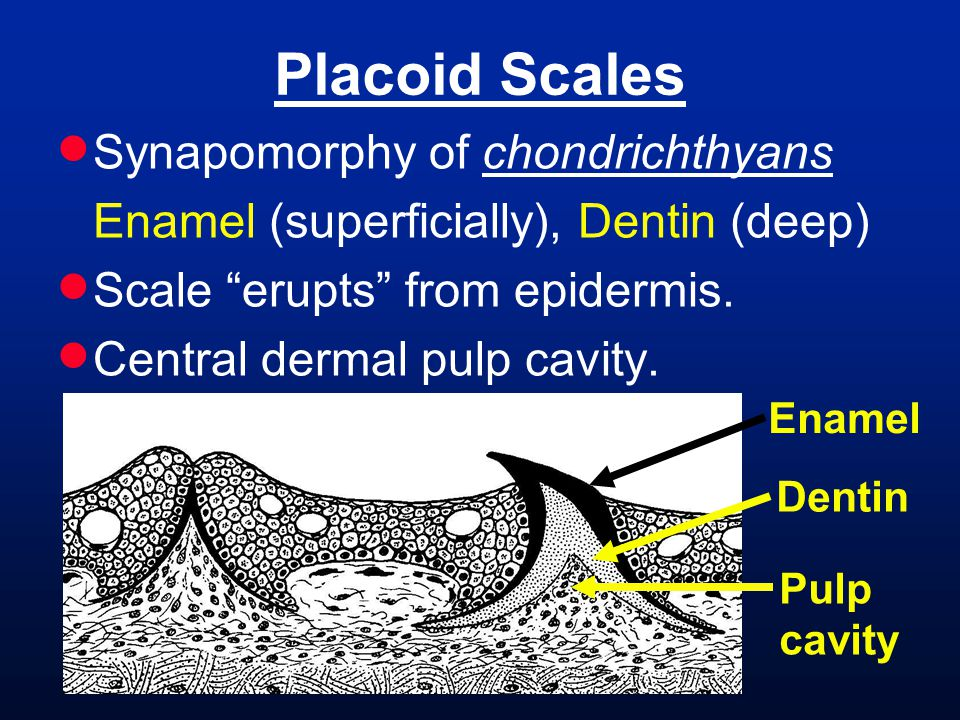 Placoid Scales Synapomorphy of chondrichthyans
