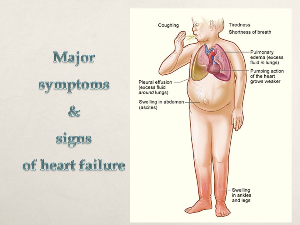 Major symptoms & signs of heart failure