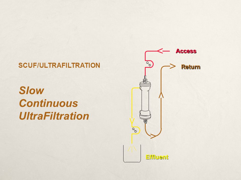 Slow Continuous UltraFiltration SCUF/ULTRAFILTRATION Access Return