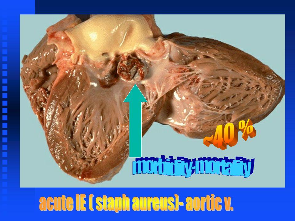 acute IE ( staph aureus)- aortic v.