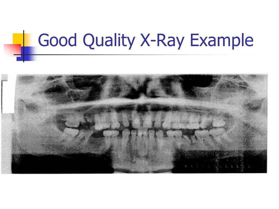 Good Quality X-Ray Example