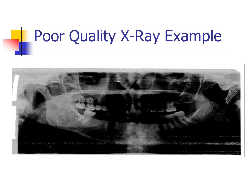 Poor Quality X-Ray Example