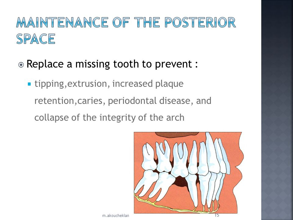 Maintenance of the Posterior Space