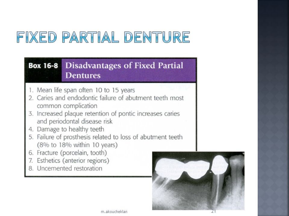 Fixed Partial Denture m.akouchekian
