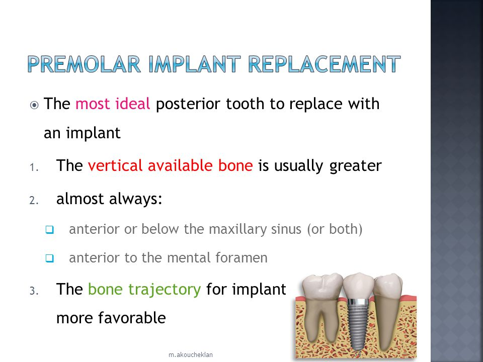 PREMOLAR IMPLANT REPLACEMENT