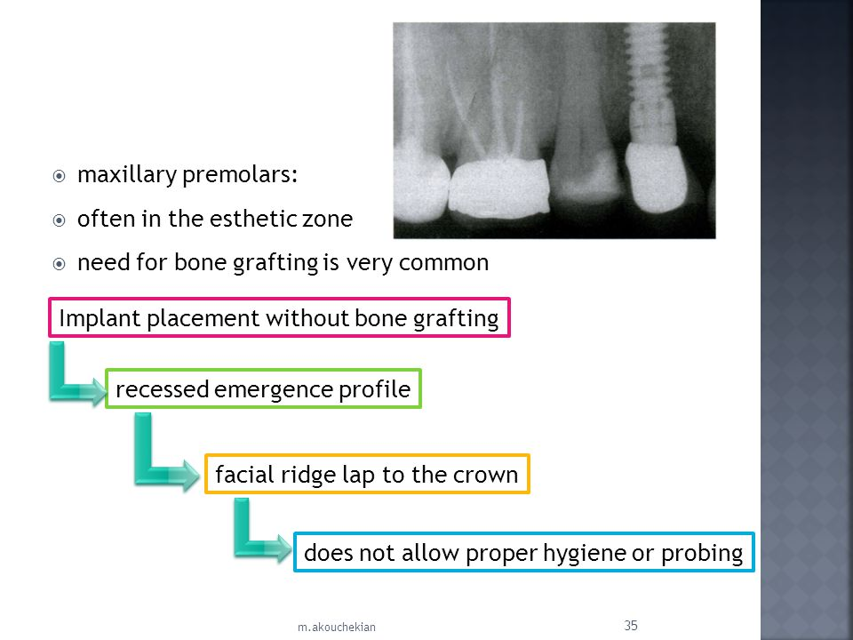 often in the esthetic zone need for bone grafting is very common