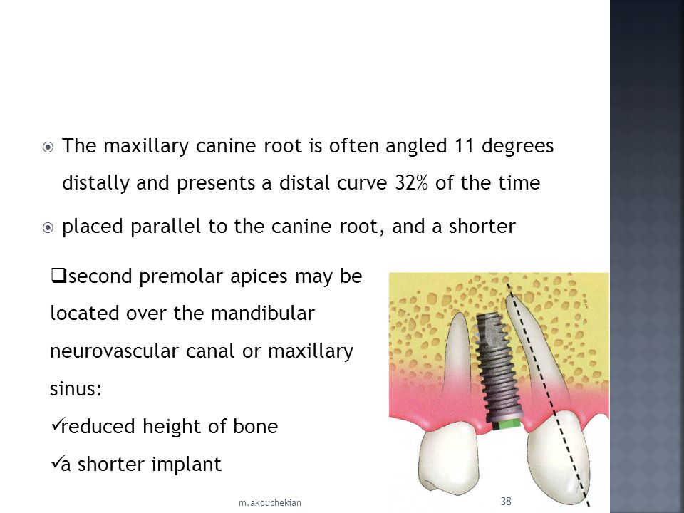 placed parallel to the canine root, and a shorter