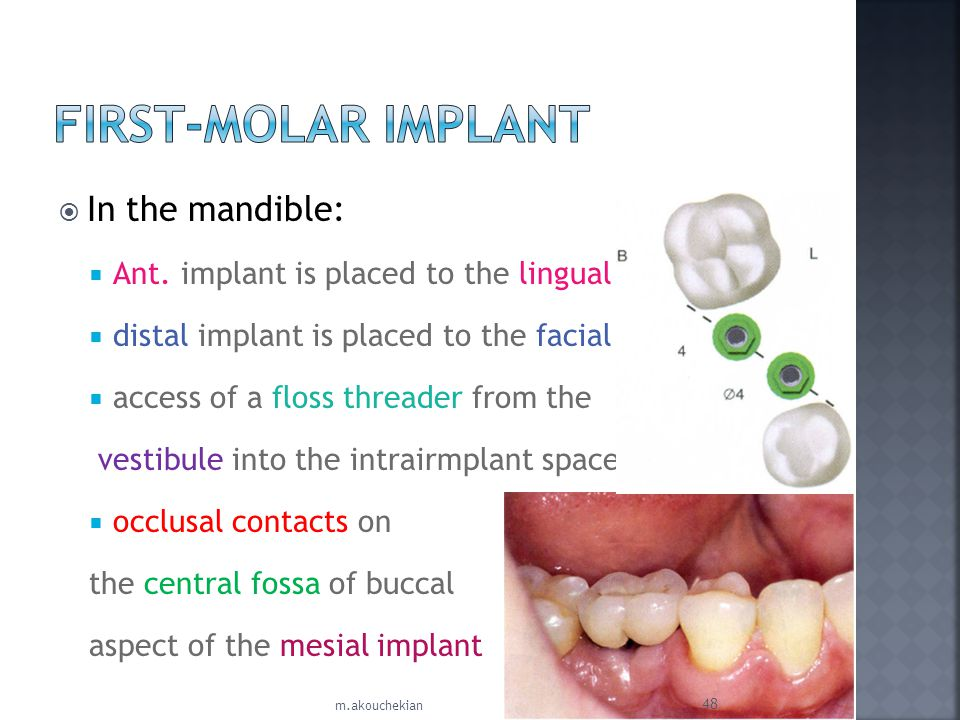 FIRST-MOLAR IMPLANT In the mandible: