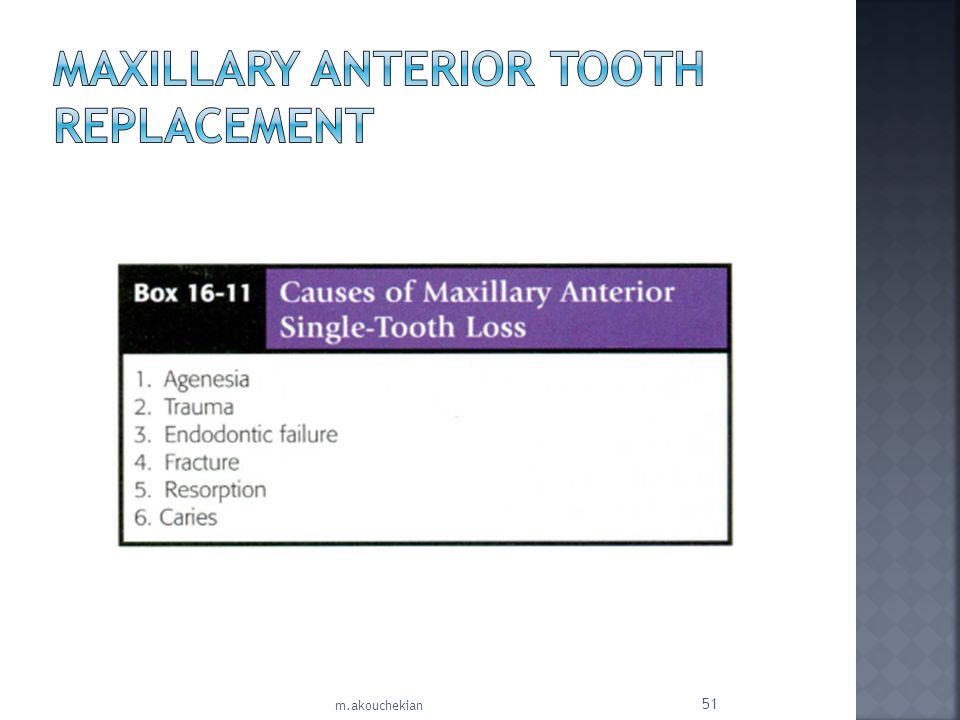 MAXILLARY ANTERIOR TOOTH REPLACEMENT