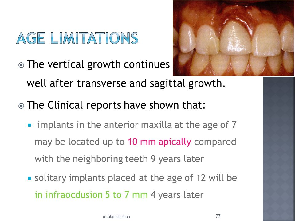 Age Limitations The vertical growth continues well after transverse and sagittal growth.