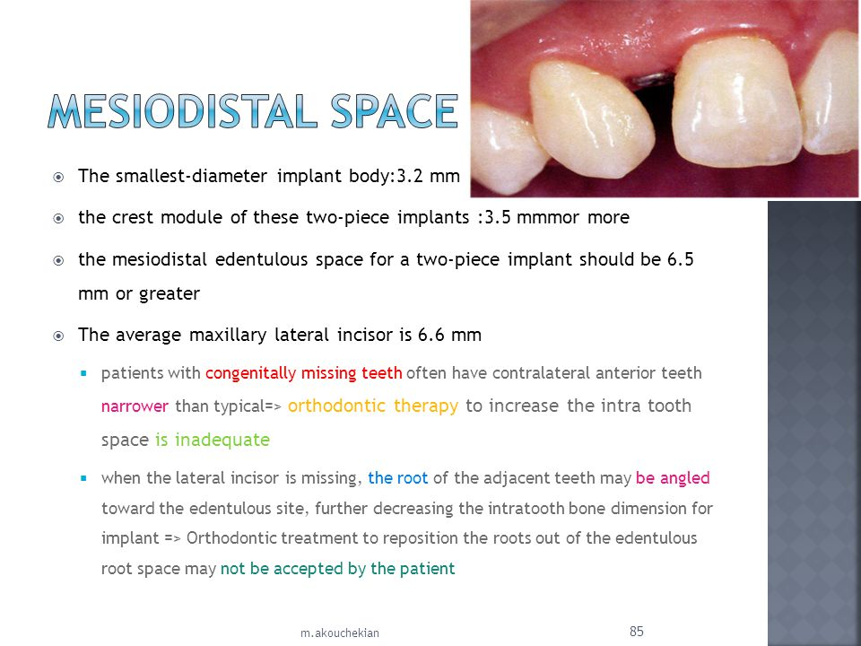 Mesiodistal Space The smallest-diameter implant body:3.2 mm