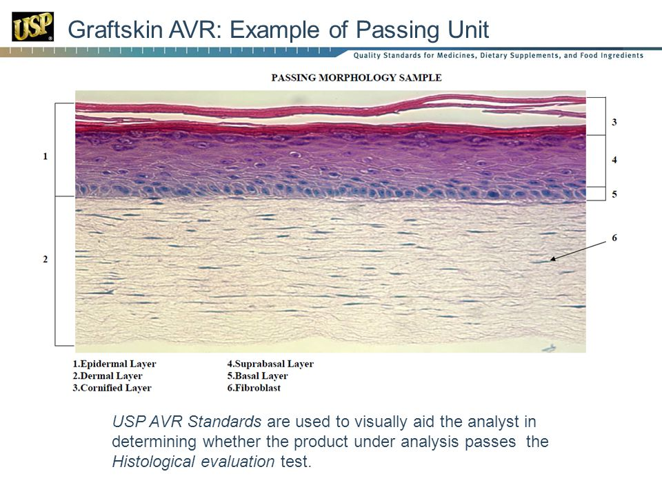 Graftskin AVR: Example of Passing Unit