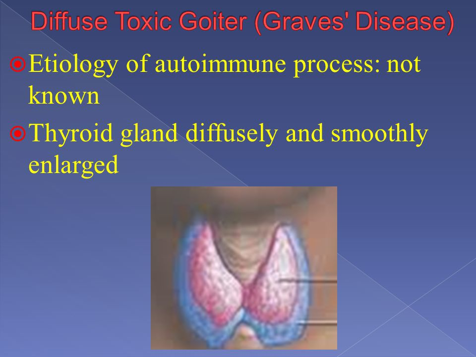 Diffuse Toxic Goiter (Graves Disease)
