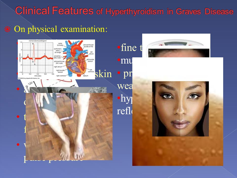 Clinical Features of Hyperthyroidism in Graves Disease