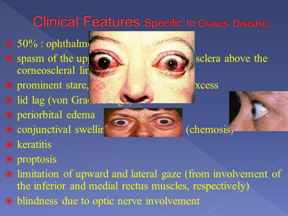 Clinical Features Specific to Graves Disease