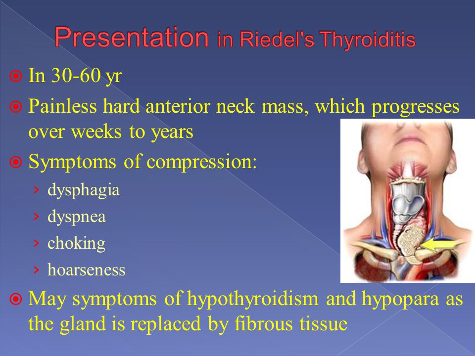 Presentation in Riedel s Thyroiditis