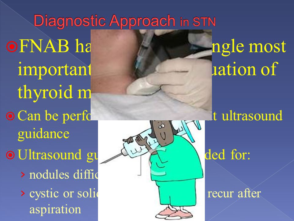 Diagnostic Approach in STN