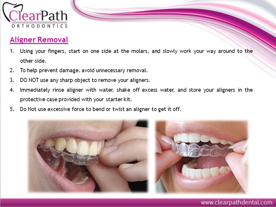Aligner Removal Using your fingers, start on one side at the molars, and slowly work your way around to the other side.