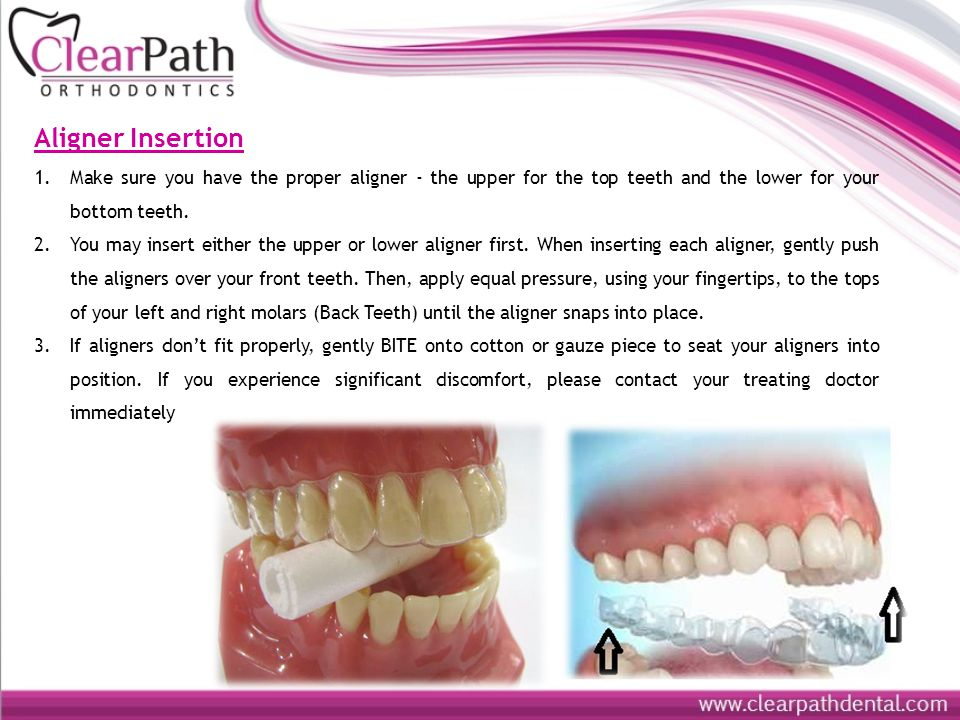 Aligner Insertion Make sure you have the proper aligner - the upper for the top teeth and the lower for your bottom teeth.
