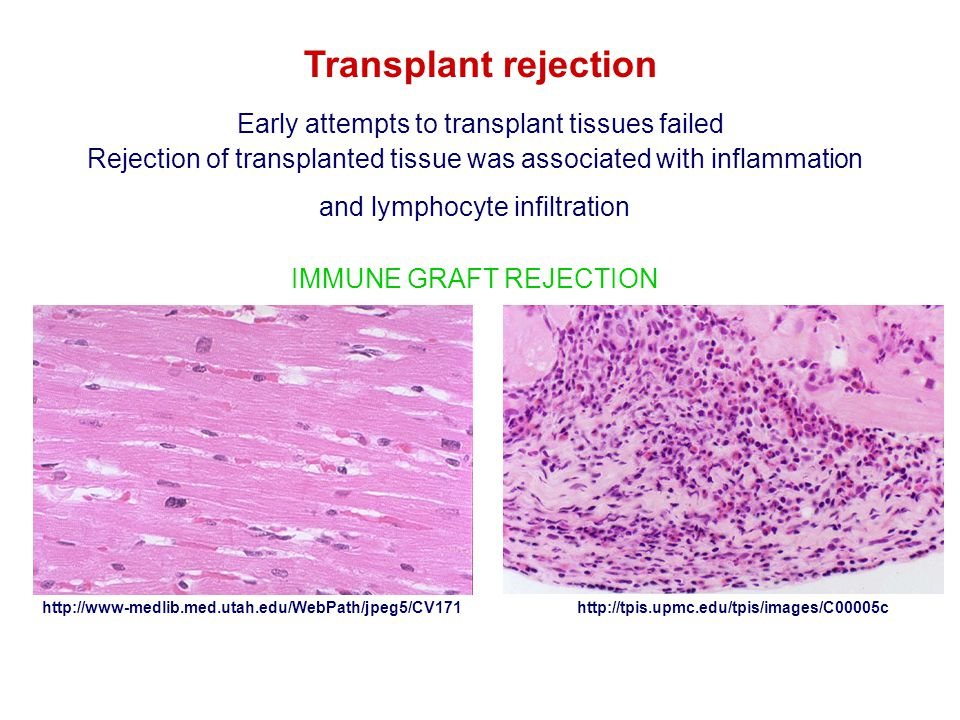 Transplant rejection Early attempts to transplant tissues failed
