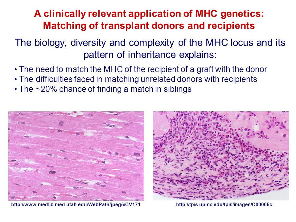 A clinically relevant application of MHC genetics: