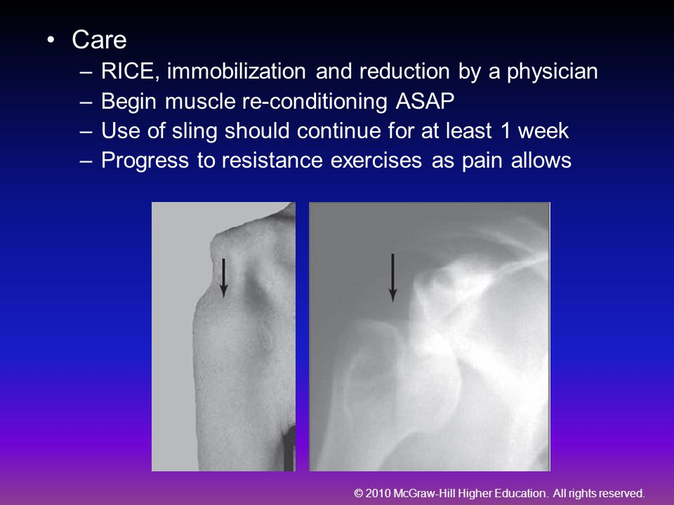 Care RICE, immobilization and reduction by a physician