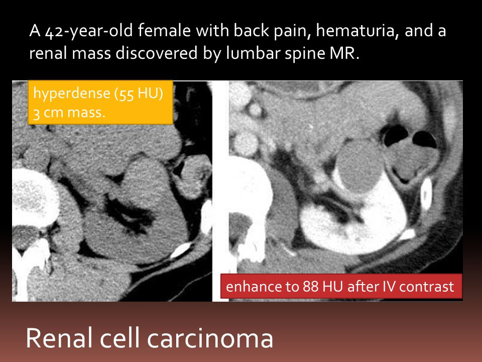 A 42-year-old female with back pain, hematuria, and a renal mass discovered by lumbar spine MR.