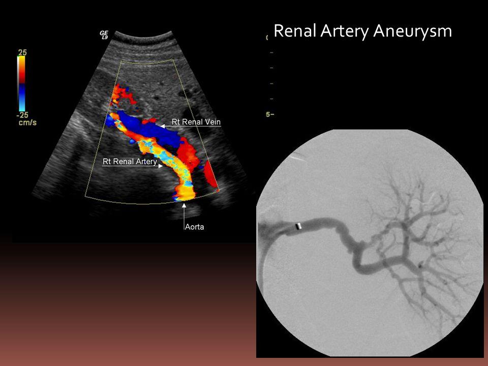 Renal Artery Aneurysm