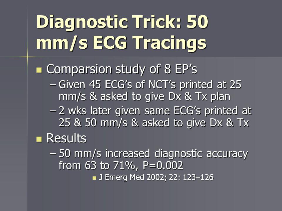 Diagnostic Trick: 50 mm/s ECG Tracings