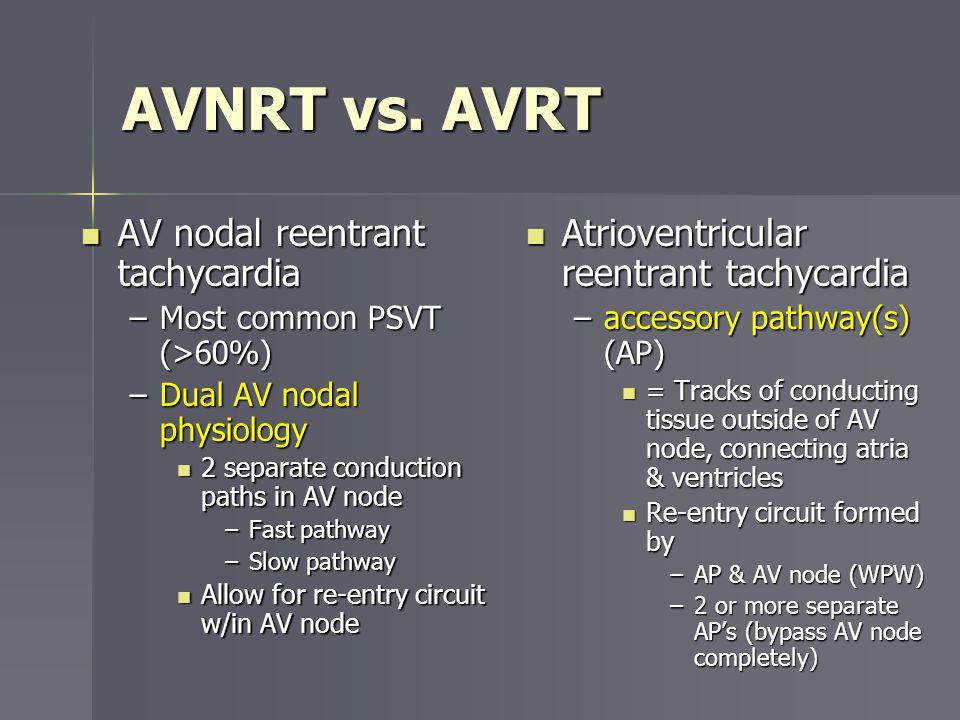 AVNRT vs. AVRT AV nodal reentrant tachycardia