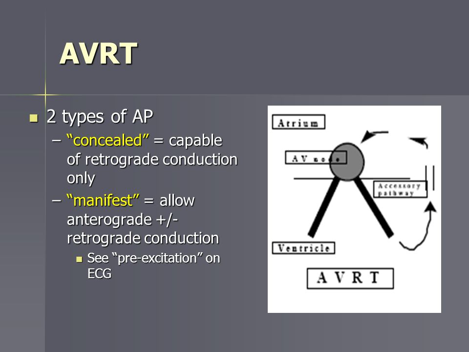 AVRT 2 types of AP concealed = capable of retrograde conduction only