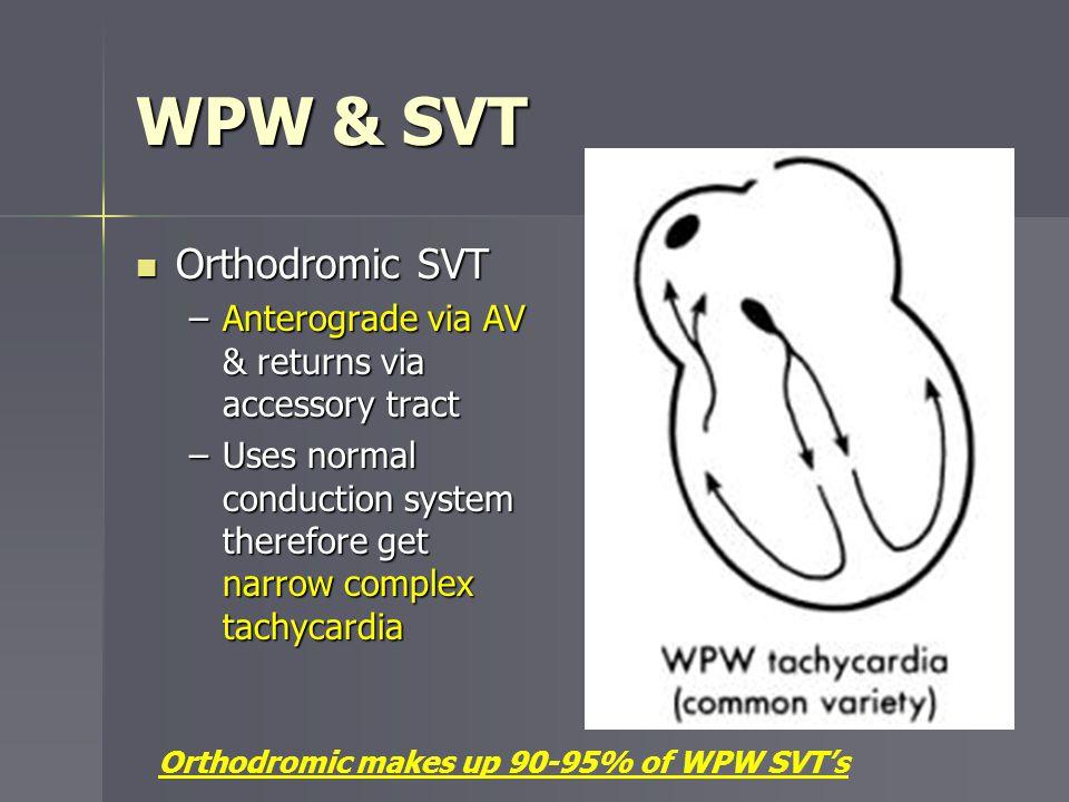 WPW & SVT Orthodromic SVT