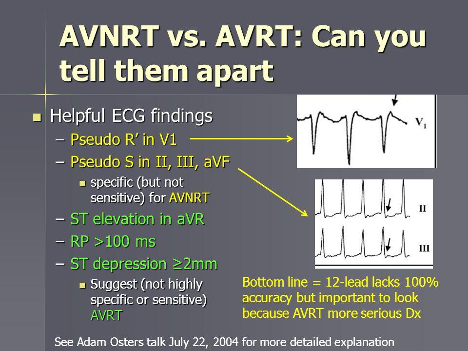 AVNRT vs. AVRT: Can you tell them apart
