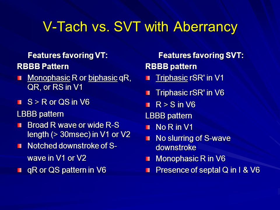 V-Tach vs. SVT with Aberrancy