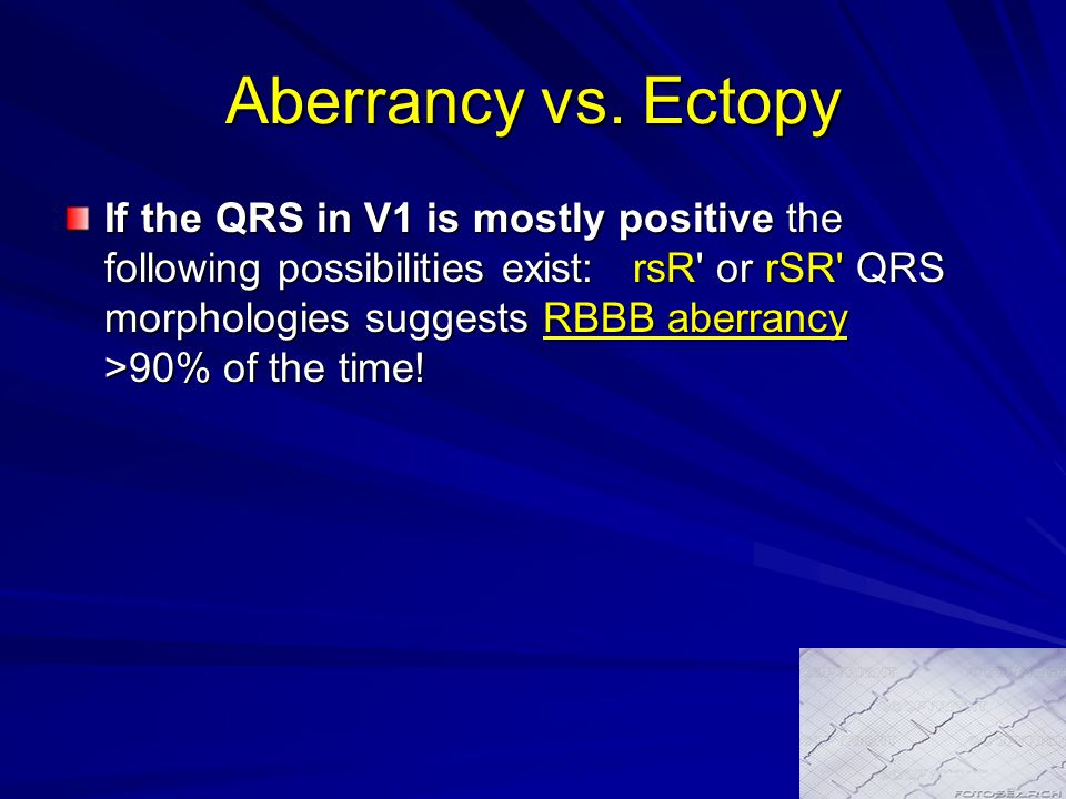 Aberrancy vs. Ectopy