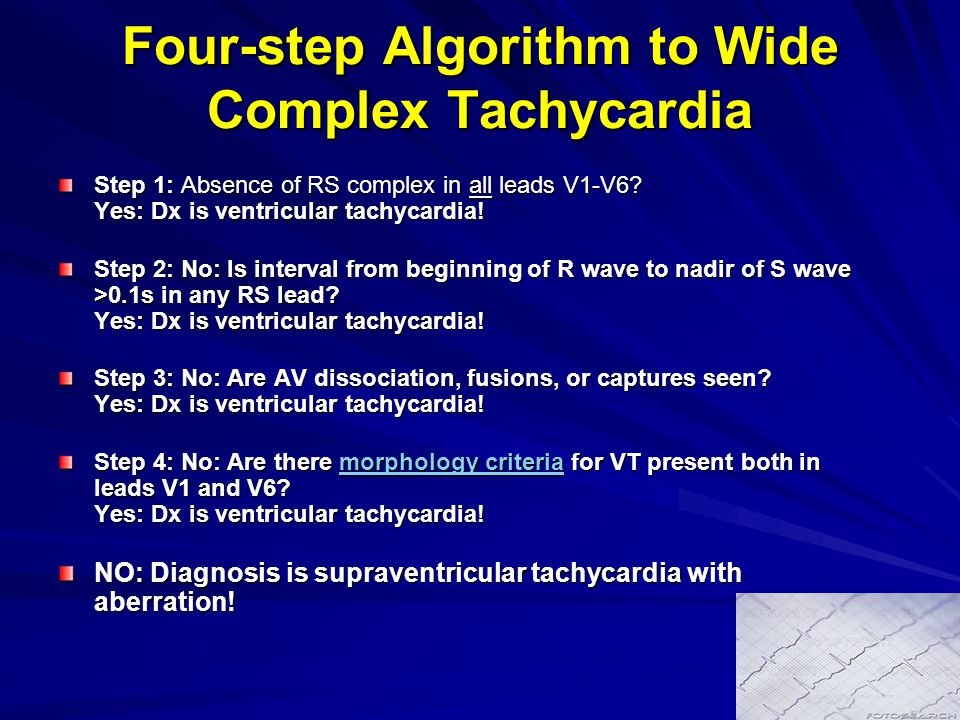 Four-step Algorithm to Wide Complex Tachycardia