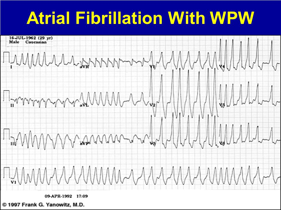 Atrial Fibrillation With WPW