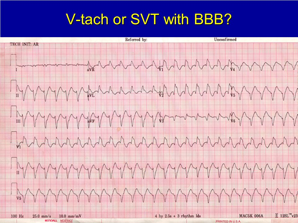 V-tach or SVT with BBB