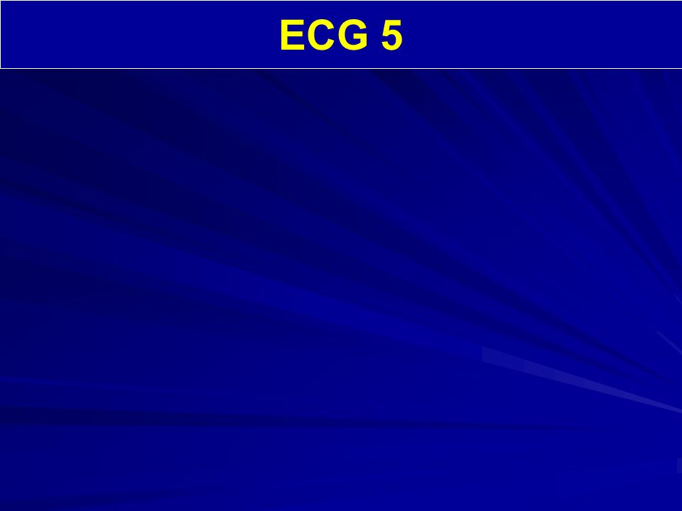 ECG 5